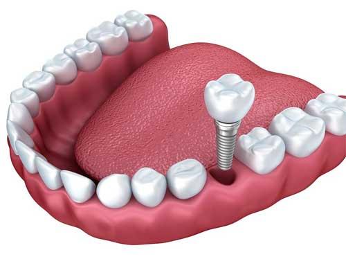 implantes dentales en Mataró
