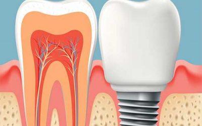 Implantes dentales en Mataró, todo lo que deberías saber.