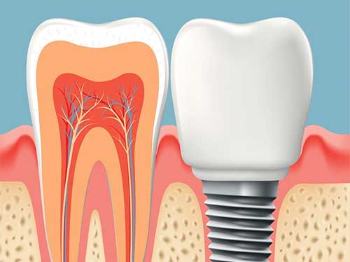 implantes dentales Mataró