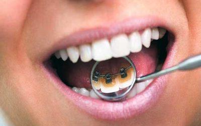 Ortodoncia en Mataró al mejor precio